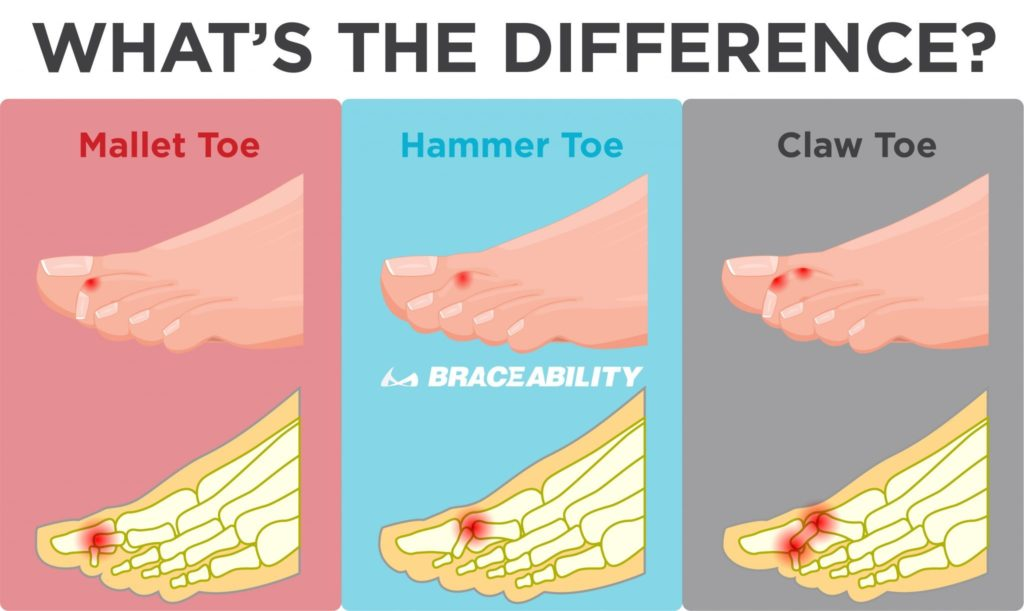 the difference mallet toe vs hammer toe vs claw toe when your toes stay bent